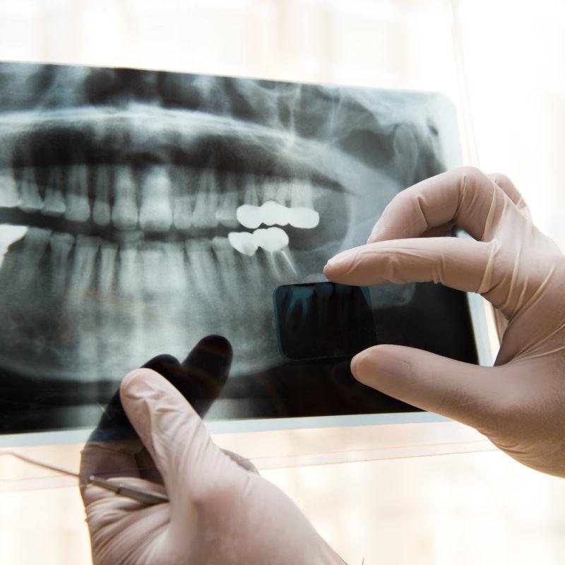 4 ερωτήσεις για τις ακτινογραφίες δοντιών
